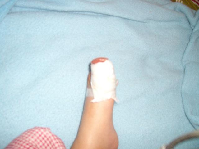 2岁3月)脚趾被板凳砸伤_沁心_新浪博客