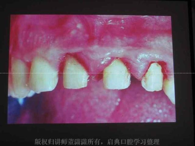 拆冠后可见牙体预备体边缘很深 高清图片