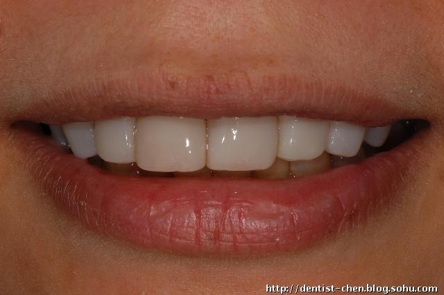 纳米树脂贴面修复四环素牙